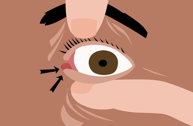 Viêm giác mạc thường bắt đầu ở lớp ngoài cùng của giác mạc và lan dần vào bên trong mắt.
