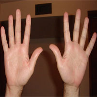 Lý giải nguyên nhân con người có 10 ngón tay