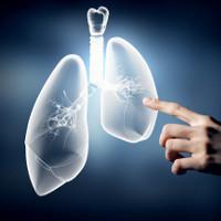 Bước tiến mới trong phẫu thuật ung thư phổi