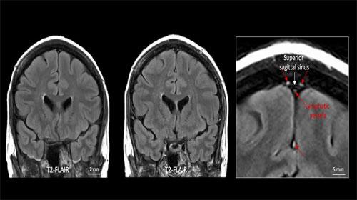 Phát hiện hệ thống bạch huyết trong não