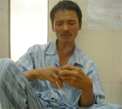 Chỉ vì vết chuột cắn, bệnh nhân này đã phải nằm viện 4 ngày mới dứt sốt.