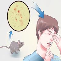 Mắc bệnh sodoku vì bị chuột cắn