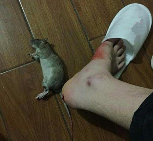 Sốt chuột cắn là bệnh do động vật truyền lây sang người.