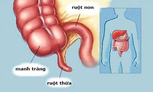 Vị trí của ruột thừa trong cơ thể.