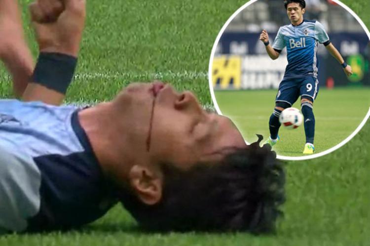 Cầu thủ Masato Kudo bị chấn thương trên sân cỏ năm 2016.