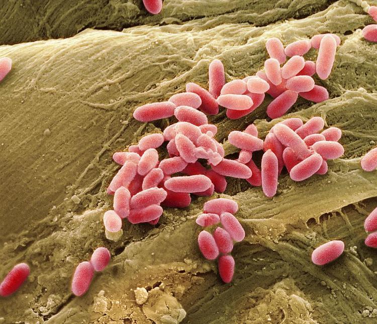 Có một loại vi khuẩn, sống ký sinh trên da gây ra tình trạng vết thương lâu lành.