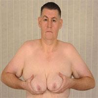 Những điều bạn chưa biết về bệnh vú to ở đàn ông