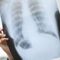 Tầm soát thế nào để phát hiện sớm ung thư phổi?
