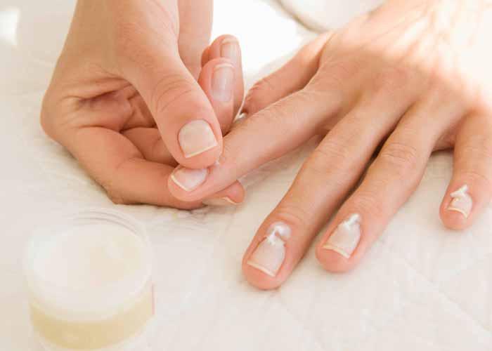 Cắn móng tay làm cho móng tay và lớp biểu bì có nguy cơ bị nhiễm trùng cao hơn người bình thường.