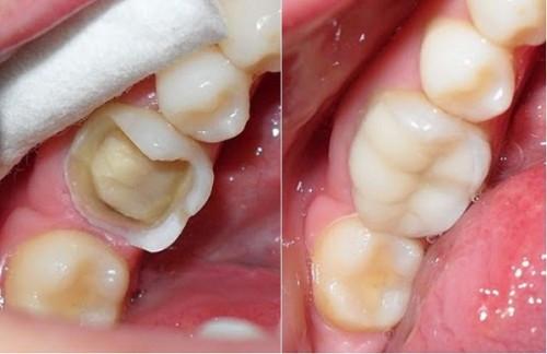 Tác động của việc nghiến răng sẽ xảy ra từ từ.
