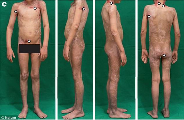 Sau một thời gian ghép da, da cậu bé đã bắt đầu được tái tạo