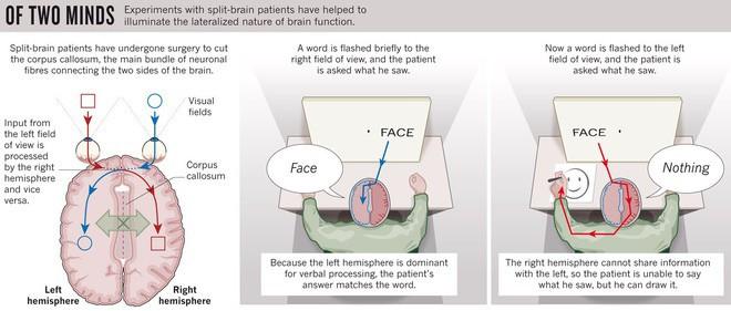 """Mô tả thí nghiệm với người bị """"tách não""""."""