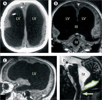 """Lớp dịch đã """"nuốt"""" hết não của ông, chỉ để lại phần vỏ não chứa các neuron thần kinh."""