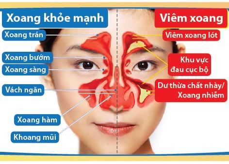 Viêm mũi dị ứng có thể dẫn đến viêm xoang dị ứng.
