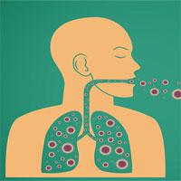 Lý do bệnh truyền nhiễm ngày càng gia tăng