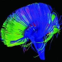 """""""Điều chỉnh"""" bộ não để chữa trị những cơn đau kinh niên"""