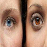 Sau 20 giây chiếu laser, màu mắt sẽ đổi từ nâu sang xanh vĩnh viễn