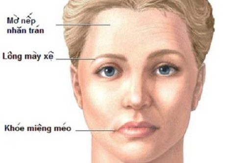 Triệu chứng nhận biết một người bị viêm dây thần kinh số 7.