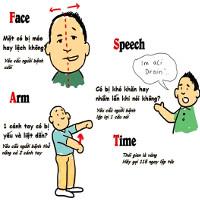 9 thắc mắc phổ biến về đột quỵ bạn nên ghi nhớ