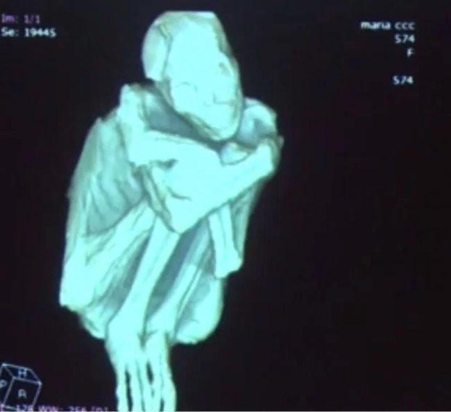 Một bộ xương với tư thế ngồi ôm chân.