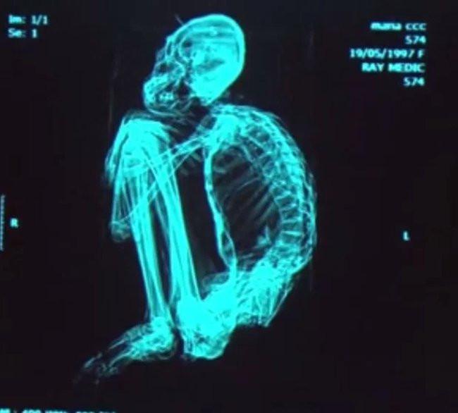 Ảnh chụp nhìn rõ hình dáng, cấu trúc của bộ xương.