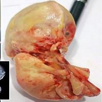 Bào thai hóa đá nằm lỳ 15 năm trong bụng người phụ nữ 52 tuổi