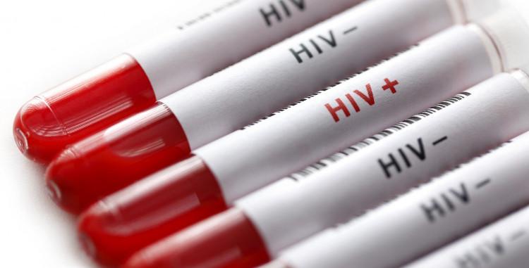 Một loại thuốc được sử dụng để điều trị ung thư phổi, thận và da có thể tiêu diệt các tế bào nhiễm virus HIV.