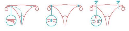 Phương pháp triệt sản nữ bằng cách thắt hai vòi trứng.