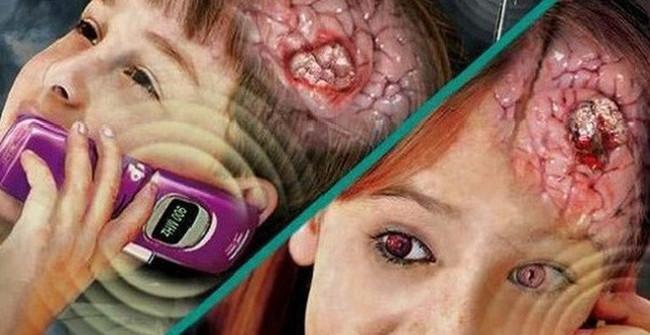 Sóng điện thoại và ung thư có mối liên hệ gì không?