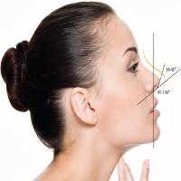 Tại sao nâng mũi, độn cằm bằng filler có thể gây biến chứng?
