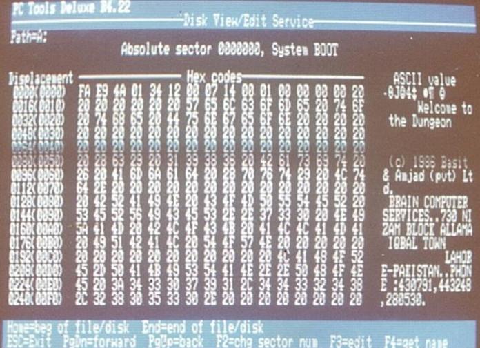 Con virus được phát tán đầu tiên trên các hệ điều hành máy tính IBM có tên là Brain.