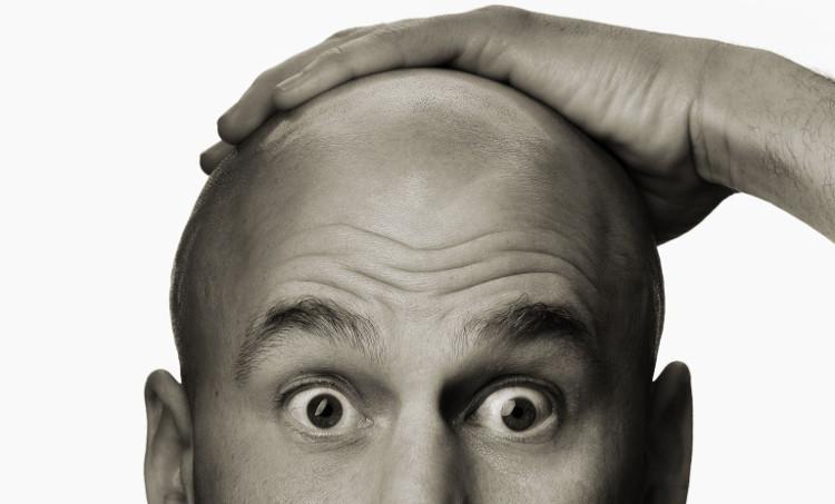 Triệu chứng nổi bật nhất của bệnh hói đầu chính là tình trạng rụng tóc không đều giữa các vùng trên da đầu.