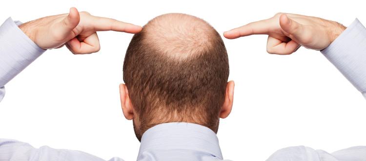 Những người hói đầu thường mất đi khả năng bảo vệ da đầu