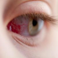 Những sự thật về mắt khiến bạn choáng váng không thể tin nổi!
