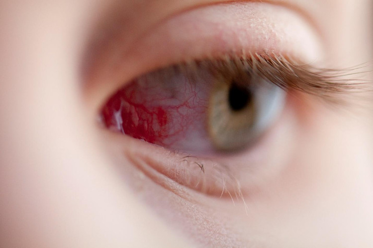 Một số vết trầy xước ở mắt có thể tự lành lại trong vòng 24 đến 48h.