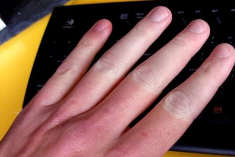Raynaud có thể khiến bạn đau đớn, cảm giác tê bì, kim châm đầu ngón tay, chân.