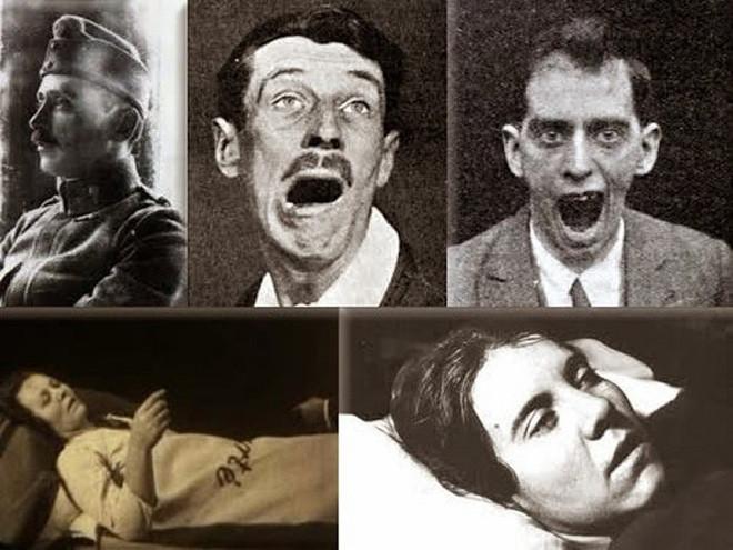 Những bệnh nhân của căn bệnh kỳ lạ này