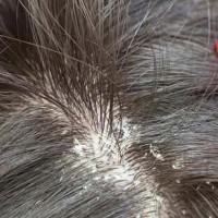 Gàu tróc từng mảng liệu có phải chính là phần da đầu khô bong ra không?