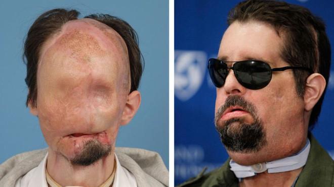 Mặc dù phải chịu đựng nhiều biến chứng, nhiều bệnh nhân vẫn lựa chọn ghép mặt.