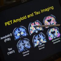 """Có thể """"trị"""" bệnh Alzheimer mà không cần đến thuốc"""