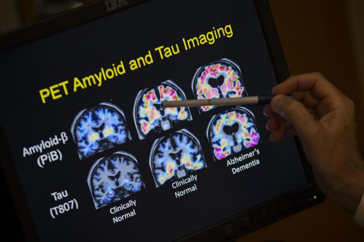 """Theo nghiên cứu mới đây, có thể có cách """"trị"""" bệnh Alzheimer mà không cần đến thuốc"""