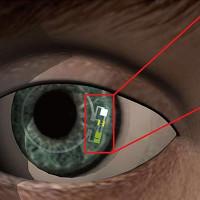 """Loại kính áp tròng """"kỳ diệu"""" có khả năng phát hiện tiểu đường"""
