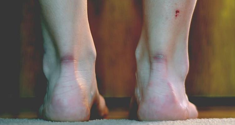 Chữa lành vết thương mà không để lại sẹo.