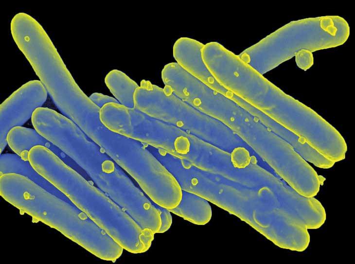 Những sinh vật hình hình que này chính là khuẩn M. leprae.