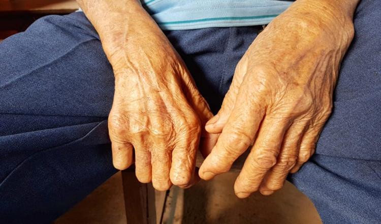 Bệnh nhân nhiễm M. leprae sẽ bị mất cảm giác và rụng dần các ngón tay, ngón chân.