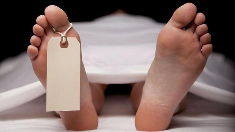 Cơ thể người có nhiều biến đổi sau khi chết.
