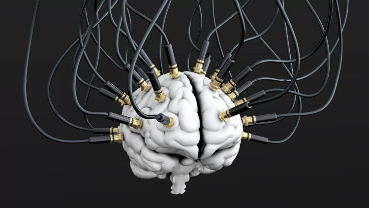 Các điện cực gắn vào não bộ, cho phép máy móc đọc được sóng não và chuyển thành văn bản.