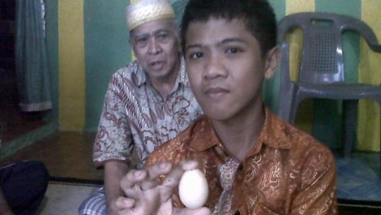 Cậu bé Akmal đẻ ra 7 quả trứng trong một tuần.