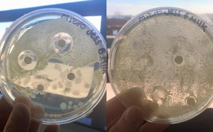So sánh khả năng kháng khuẩn của đĩa nghiệm ngâm sữa mẹ (trái) và đĩa nghiệm ngâm sữa công thức (phải).