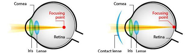 Nguyên lý của phương pháp này giống với sử dụng kính áp tròng